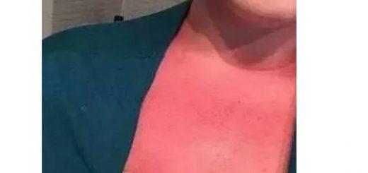 转贴 | 家里有这款著名防晒乳?赶快扔掉!导致全球多名儿童皮肤严重烧伤,相关部门展开调查!