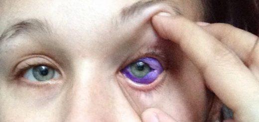 眼球文身成新时尚 恐致失明