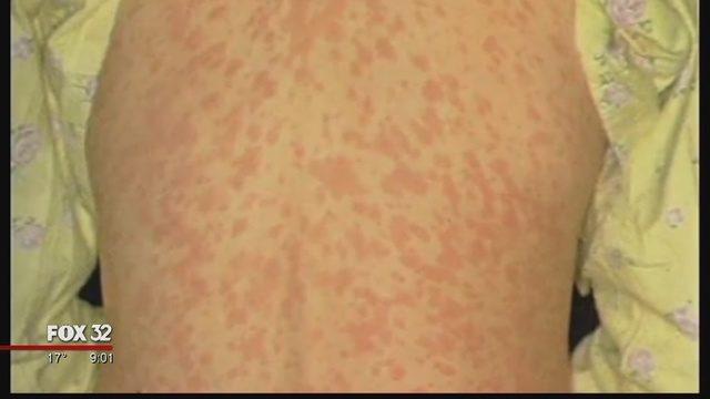 一架美国航班的乘客确诊患有麻疹,大家外出多谨慎!