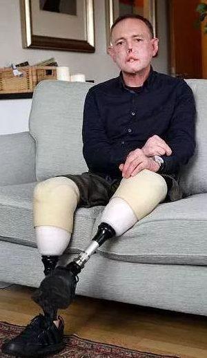 一次跟狗狗的玩耍,2周后他失去了双腿,6根手指,一部分脸