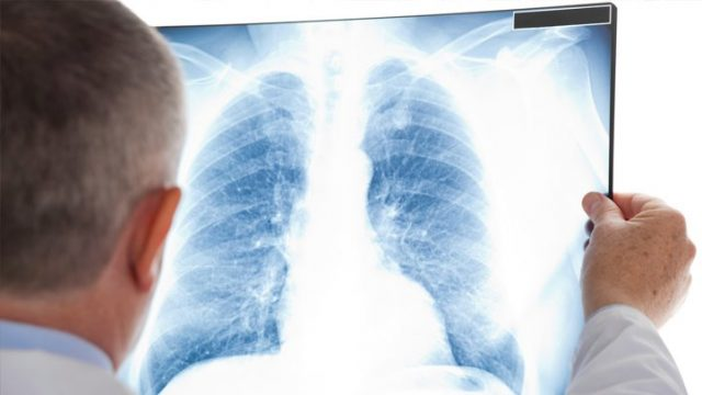 研究发现:淋浴喷头恐导致肺部细菌感染