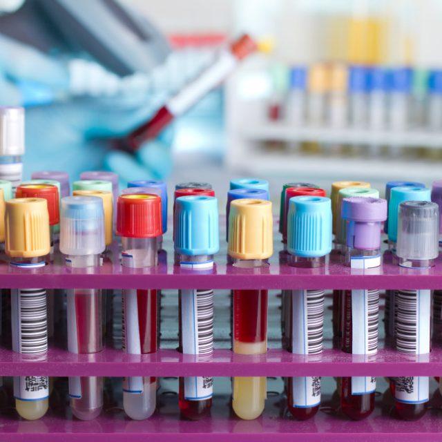 10分钟内可诊断出癌症 研究人员开发血液新检测法
