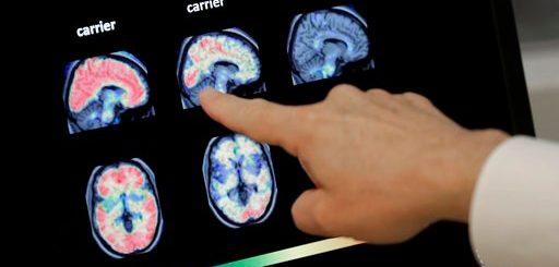 美华裔学者研究发现 这样做有助减缓阿尔兹海默症发展