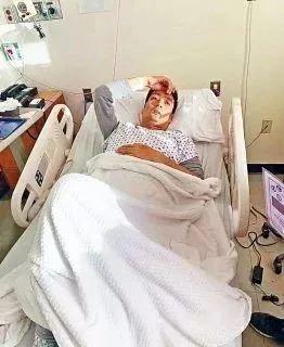 32岁华男偷渡来美仅4个月,发现肝癌晚期 盼归国团聚