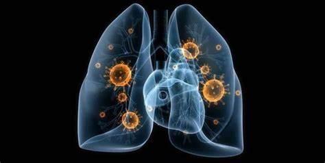 新冠肺炎:谁是毒源?——美国人民必须看清这条逻辑线
