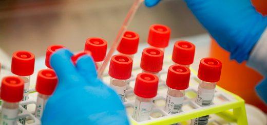 FDA再授权两种新冠抗体检测 雅培也推抗体检测