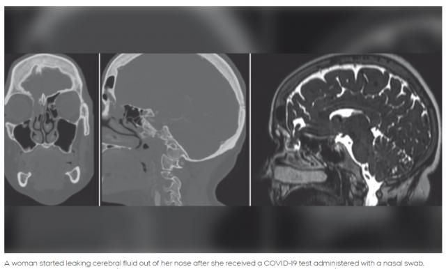 恐怖! 40岁女子做新冠核酸检测 一捅鼻子 脑液当场流不停!