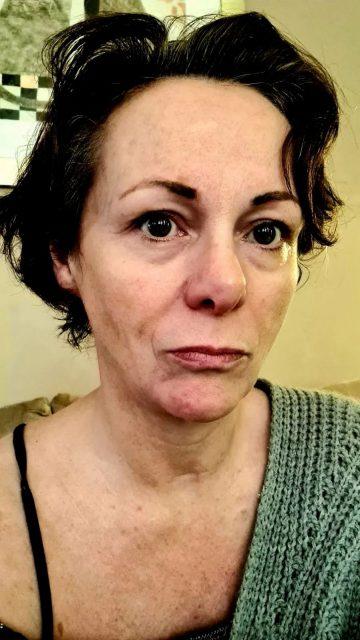 惊! BBC女记者感染新冠 四肢竟成这幅吓人模样: 这是全世界最恐怖的病!