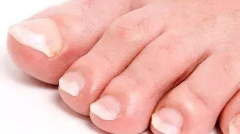 身体有问题,脚会告诉你!脚部出现9种症状,危险,别拖!