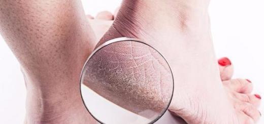 为什么有些人脚后跟经常开裂?可能与这几个原因有关,尽量别忽视!