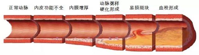 血栓大多是吃出来的,医生:这四种食物一定要少吃!