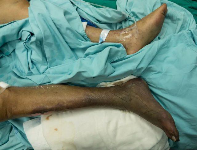 惊恐! 医生爆料 Delta变种或导致坏疽 多名患者遭截肢 有人惨变耳聋!