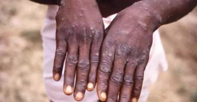 堪比新冠 ! 美27州200密切接种者隔离,潜伏期14天!猴痘到底有多可怕?