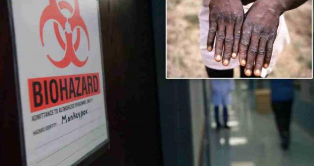 CDC证实美国一旅客感染猴痘,死亡率高达10%,无疫苗!