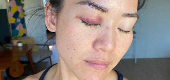 华裔真人秀女选手在洛杉矶街头遭随机袭击!脸上缝数针